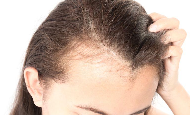 hairverse